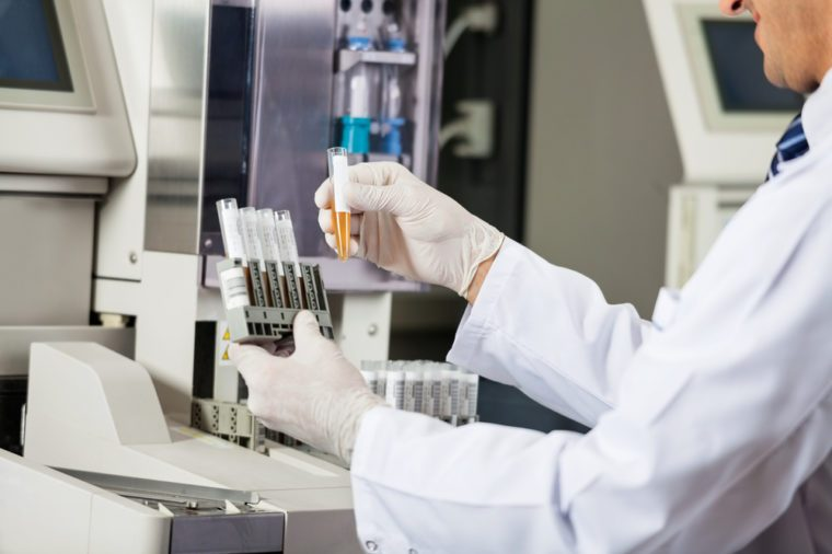 Midsection of male scientist analyzing urine samples in laboratory