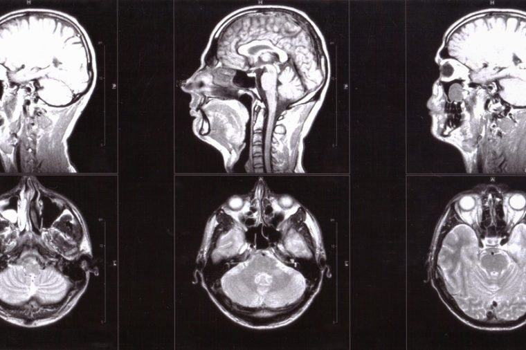 Magnetic resonance imaging of human head, tomography