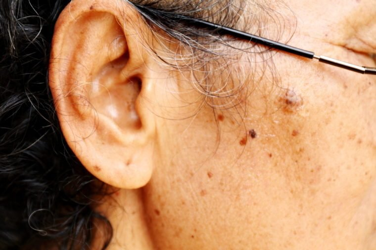 Asian skin of old women mole with birthmark
