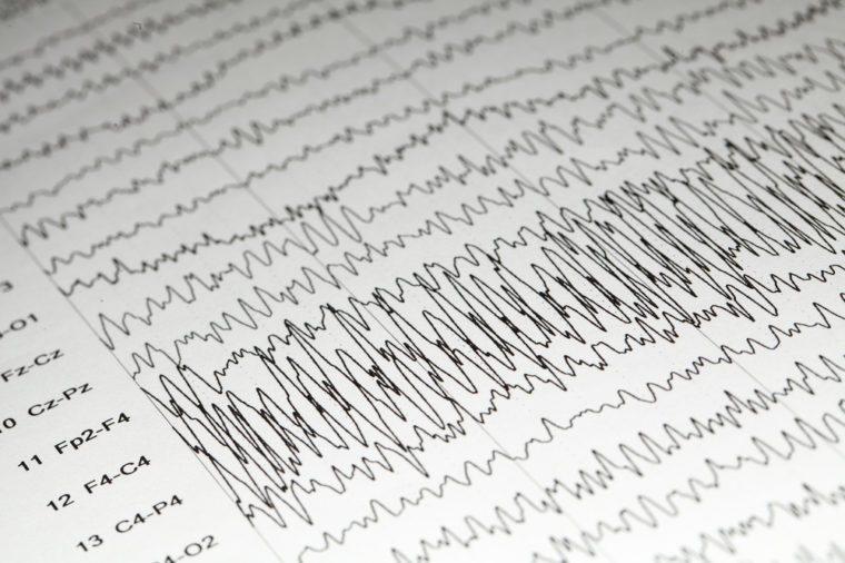 Abnormal EEG on brain wave background,Epileptiform discharge