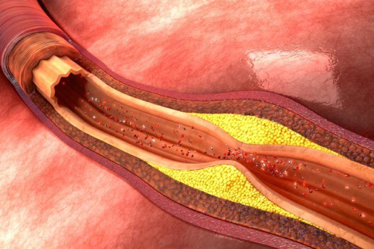 Plaque in blood vessels 3d illustration
