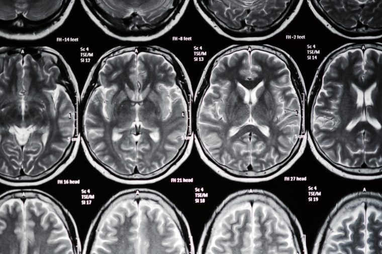 This Common Skin Condition Could Be Linked to Alzheimer's