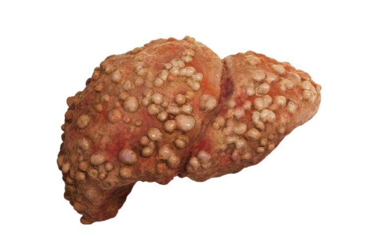 cirrotic liver.