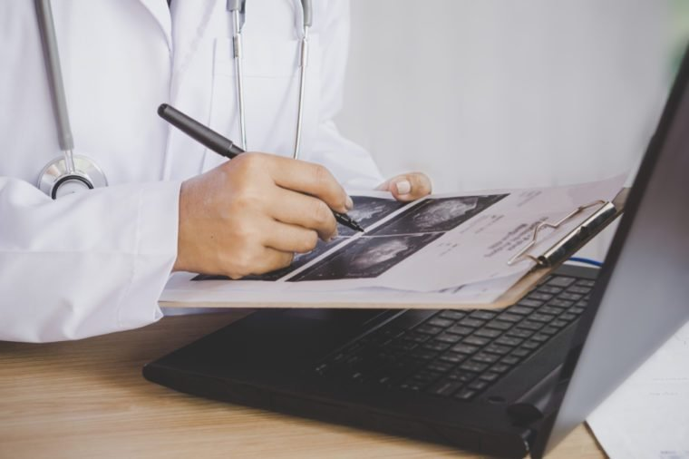 doctor holding pen in hand analyzing x-ray medical picture while working on computer laptop on desk