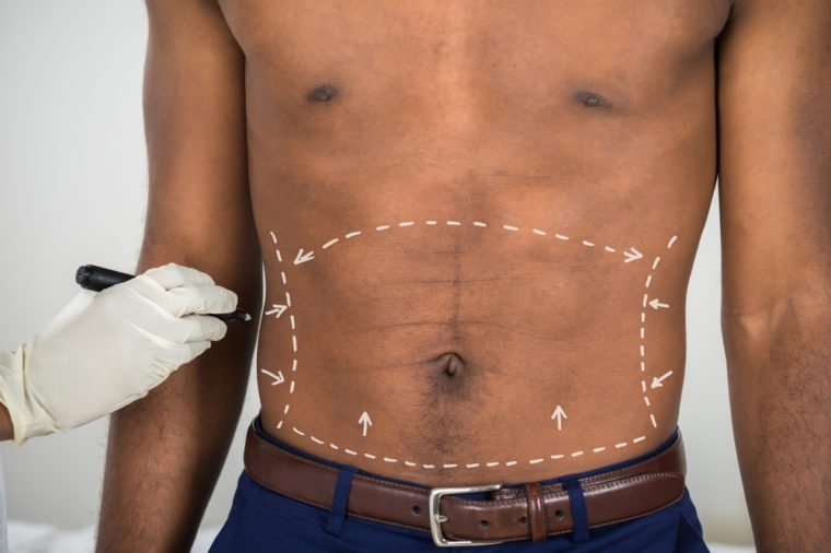 Close-up Of Person's Hand Drawing Correction Lines On Abdomen Of African Man