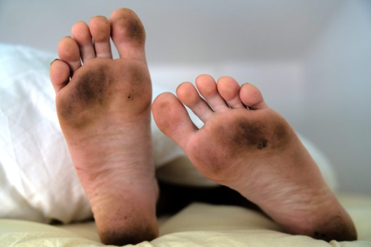 Dirty bare feet of a sleeping person showing out of the blanket on a bed
