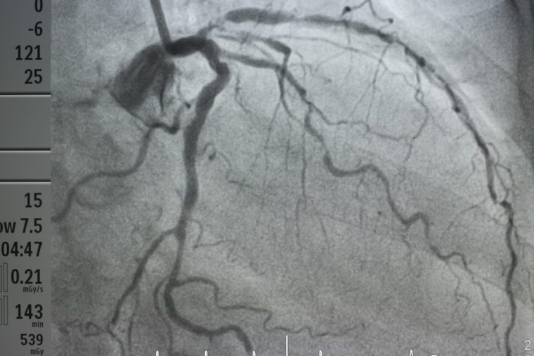 coronary artery angiography ,Coronary artery disease , left coronary angiography