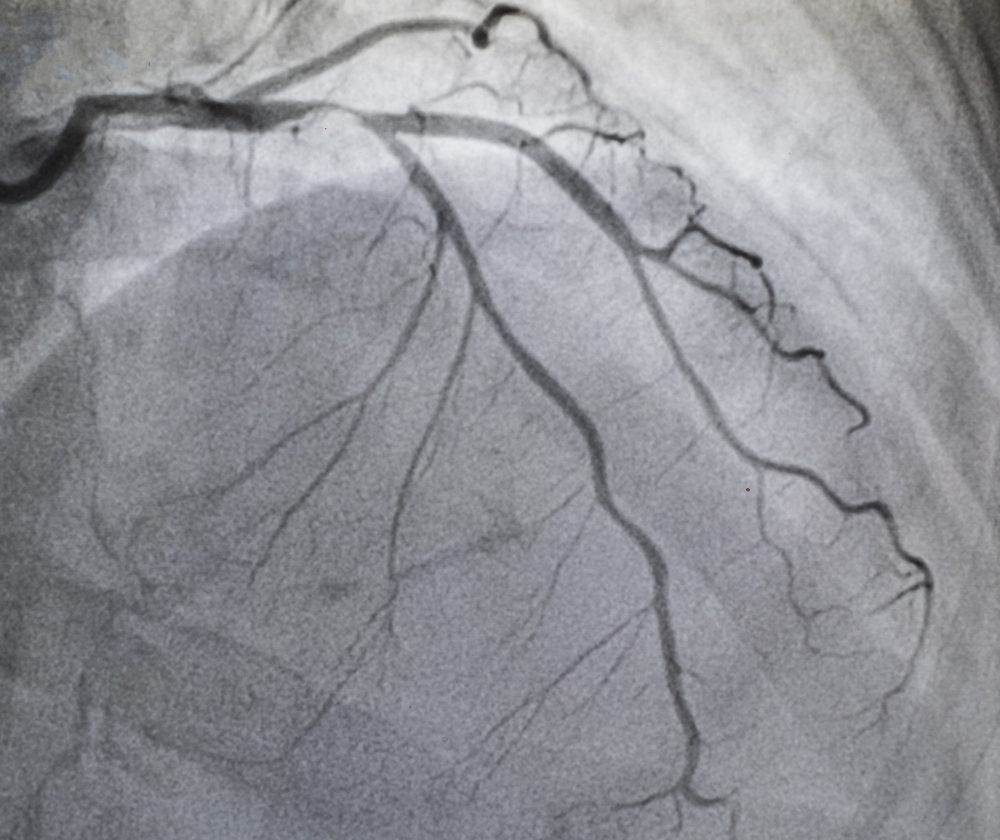 Coronary angiography , left coronary angiography, stenosis at proximal Left Anterior Descending coronary artery