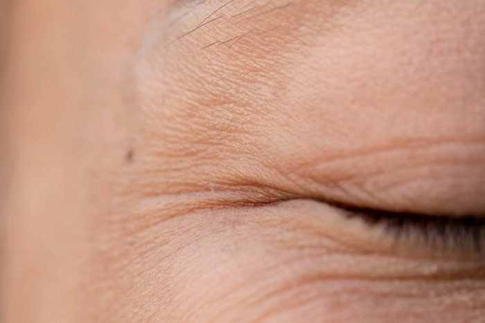 women have wrinkles around the eyes