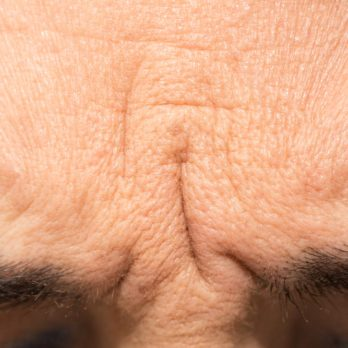 What Your Facial Wrinkles May Be Trying to Tell You