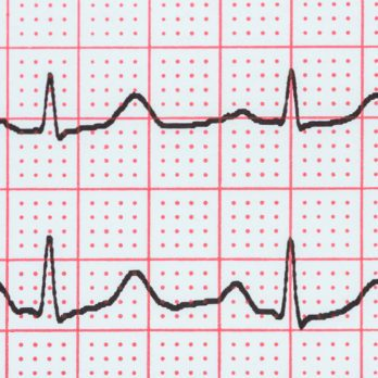 6 Warning Signs You May Be About to Go into Cardiac Arrest