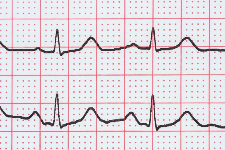 Sinus Heart Rhythm On Electrocardiogram Record Paper Showing Normal P Wave, PR and QT Interval and QRS Complex