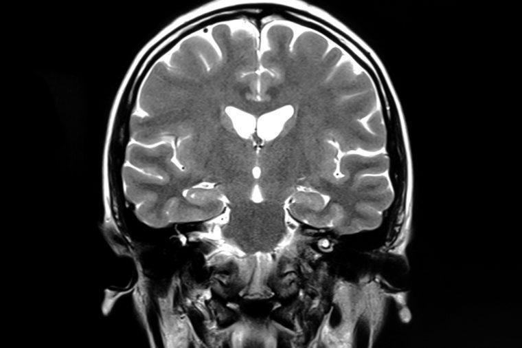 MRI scan of human brain