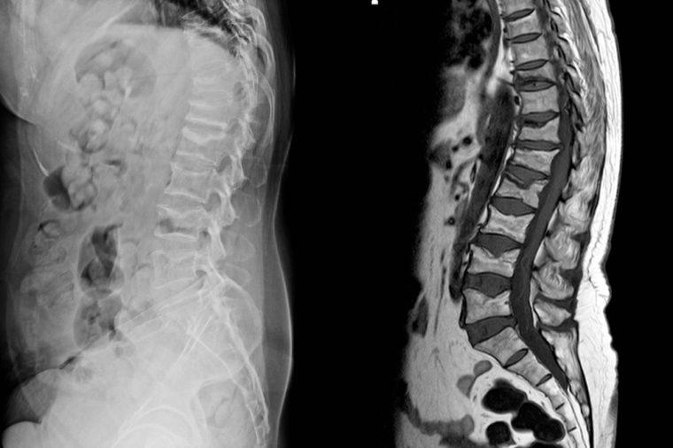X-ray and MRI Lumbar spine findings severe vertebral collapse of T12 vertebra mild to moderate collapse of L1-2 vertebrae.