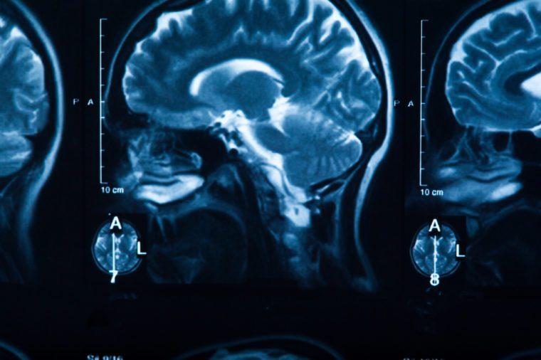 The X-ray of the human brain closeup image