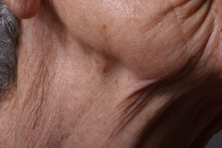 If You Have Bumps on Your Neck, Here's What It Could Mean   Reader's