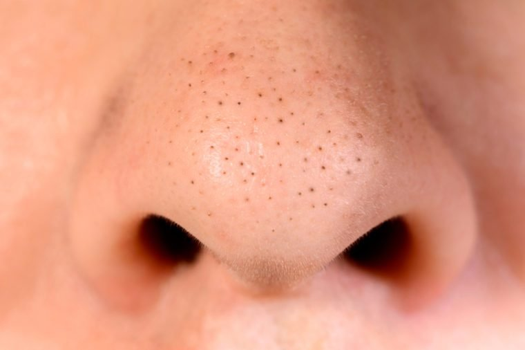 Close up of blackhead pimples on the nose