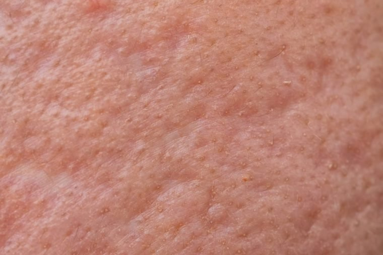 close up of nodular cystic acne skin