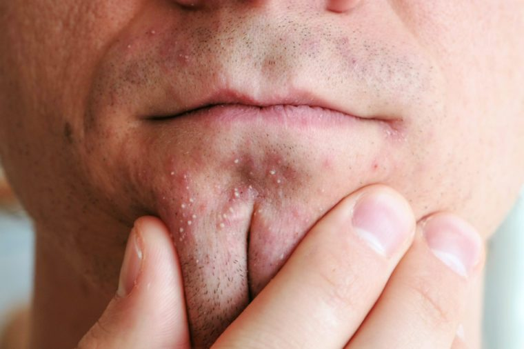 Man's hands squeeze whiteheads on the chin