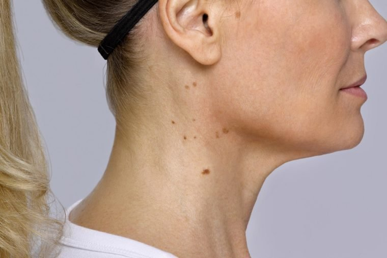 If You Have Bumps on Your Neck, Here's What It Could Mean | Reader's