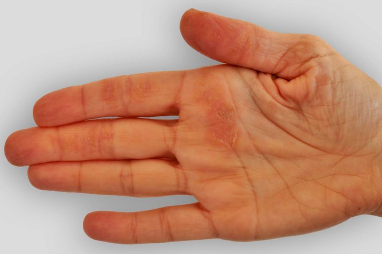 hand with blotchy red spot