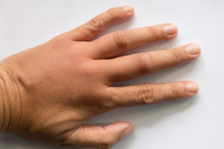 These Are the Diseases Your Hands Can Predict | The Healthy
