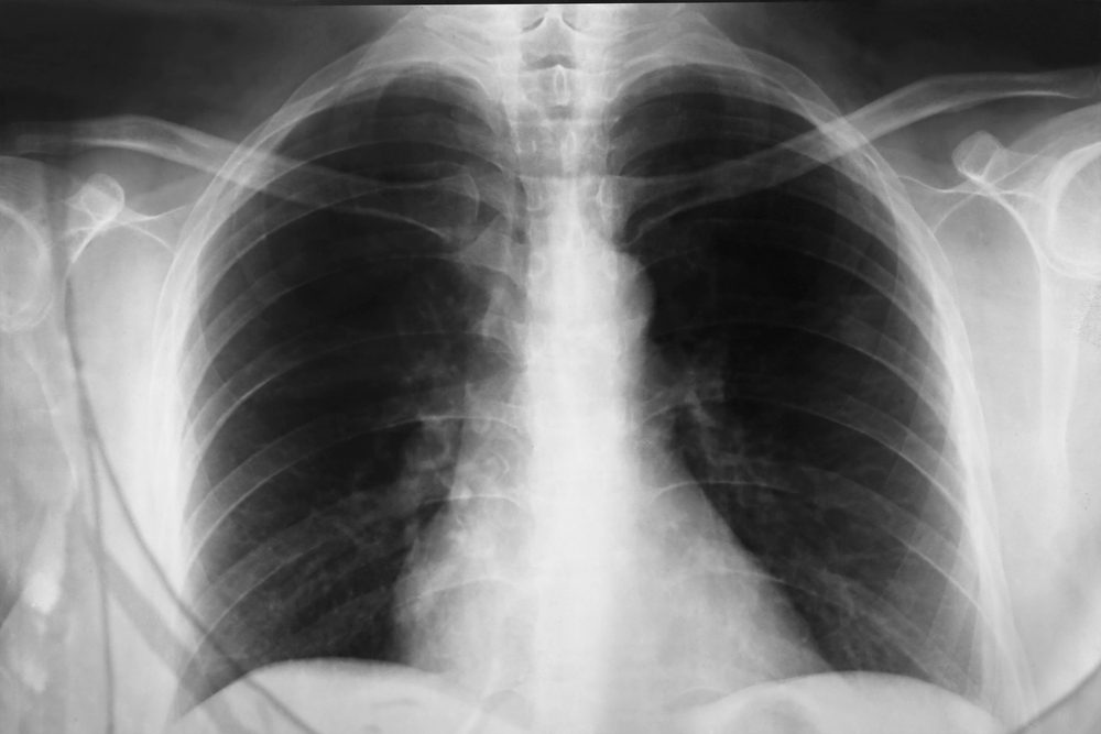 Close up a chest xray