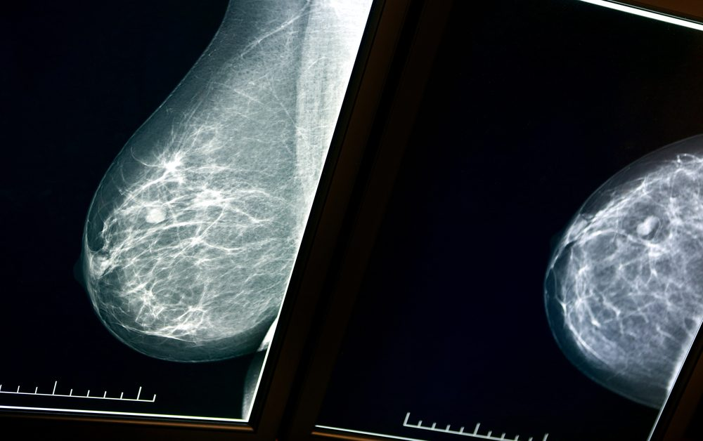 X-ray mammogram image of breast with cancer