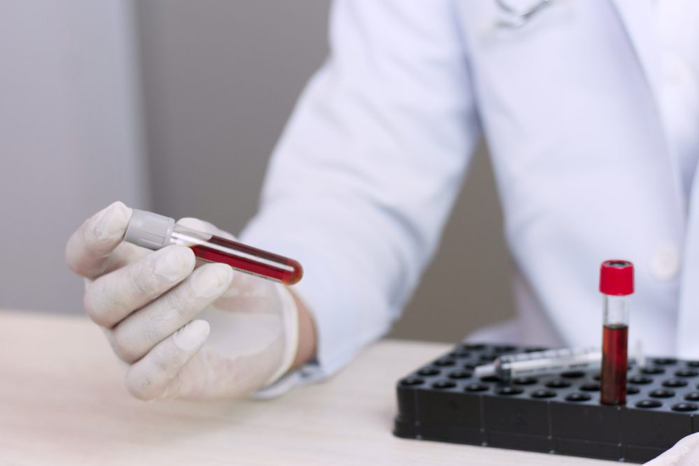science, chemistry, biology, medicine and people concept - close up of young female holding tube with blood sample making and test or research in clinical laboratory