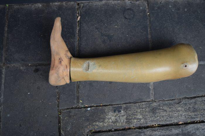 Prostheses,Through the use of prosthetics worn.