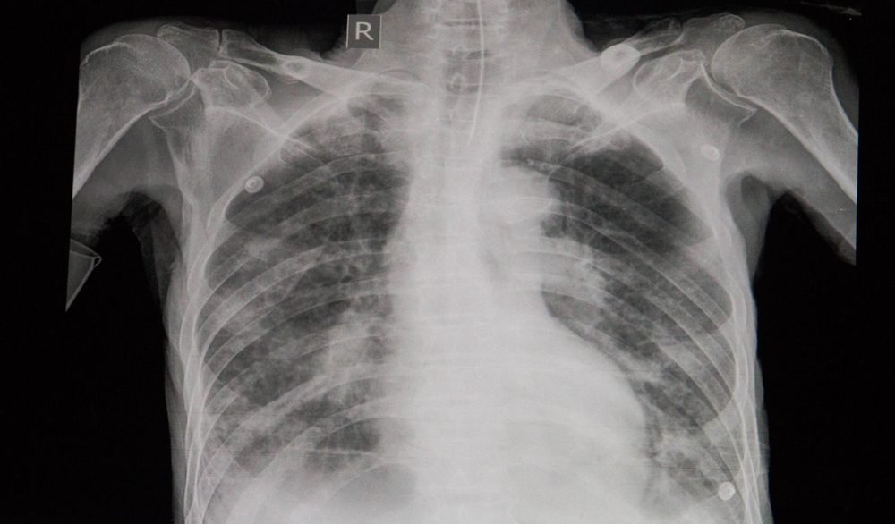 diagnostic chest X-ray film of a patient with cardiomegaly, pulmonary edema