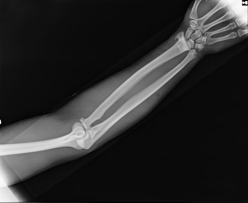 X-ray view of elbow