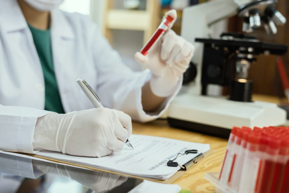 medical doctor 's hand holding blood sample and making notes writing patients data on prescription,lab technician use microscope and test tube in laboratory background