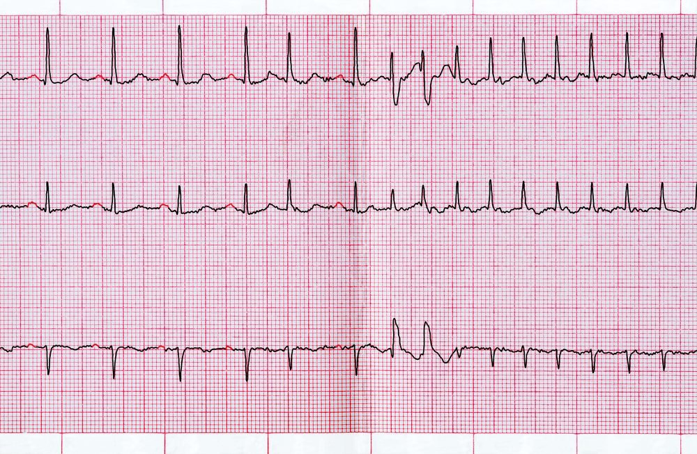 Emergency cardiology. ECG with supraventricular extrasystole and short paroxysm of atrial fibrillation