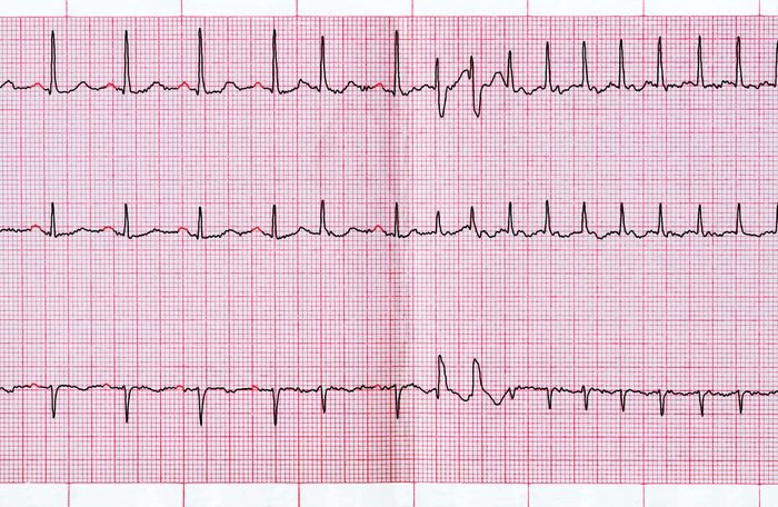 Emergency cardiology. ECG with supraventricular extrasystole and short paroxysm of atrial fibrillation
