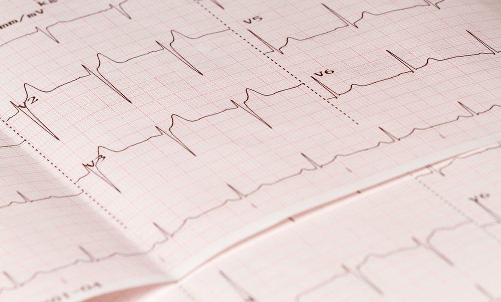 Electrocardiogram close-up