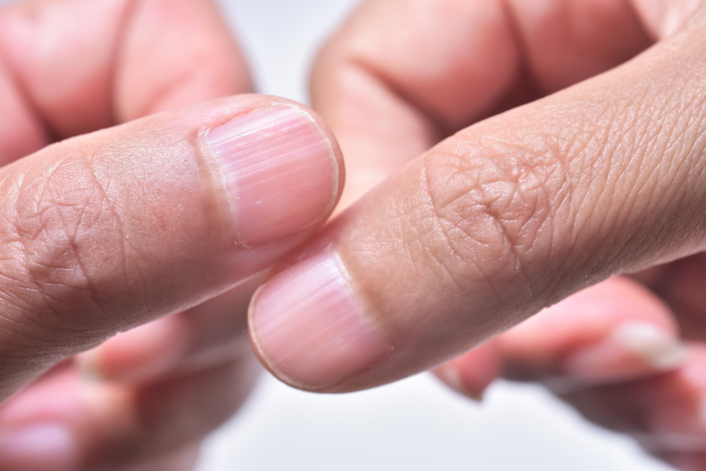 Ridges in fingernails: What It Means if You Have Them | Reader\'s Digest
