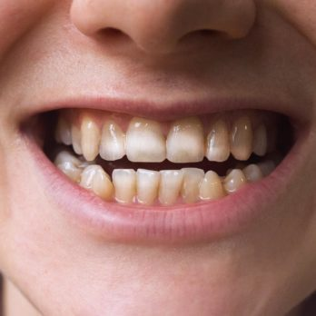 If You Have These Marks on Your Teeth, You Could Have This Autoimmune Disorder