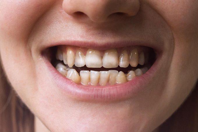 celiac disease teeth