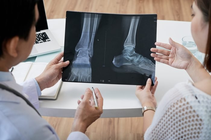 Over shoulder view of middle-aged surgeon showing foot X-ray to female patient while having appointment, close-up shot