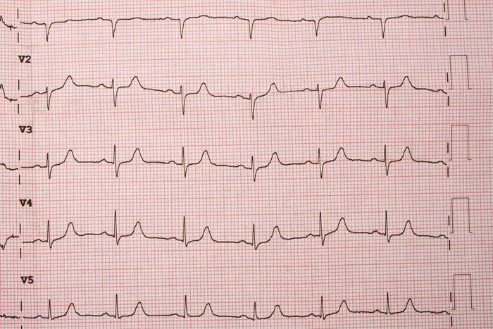 heart rate electrocardiogram