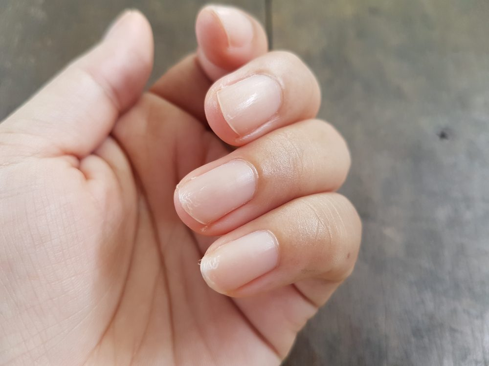 Close up of nails that have problem by peeling after doing manicure. Health and beauty problem.