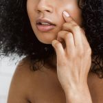 How to Get Rid of Whiteheads: 5 Remedies That Work