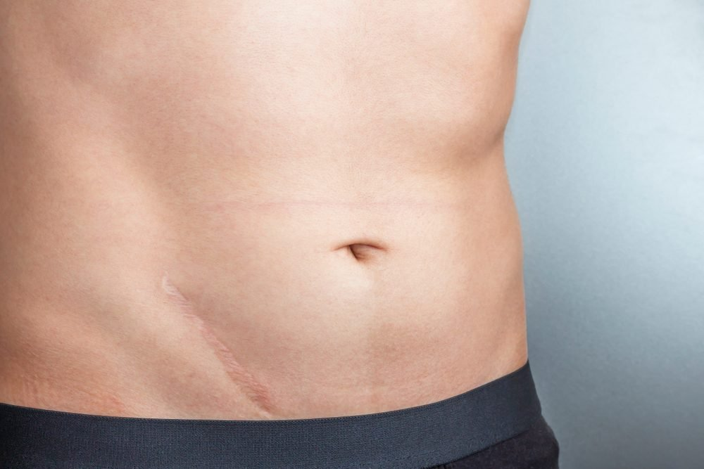 Young man with scar after surgery on abdomen, removal of appendicitis. Scars removal concept.