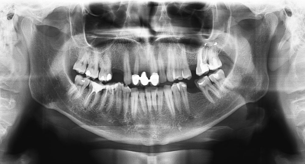 Original black white x-ray teeth scan mandible. Panoramic negative image facial of young adult male. Photo was taken on digital system equipment for dental diagnostic examination upon clinical checkup