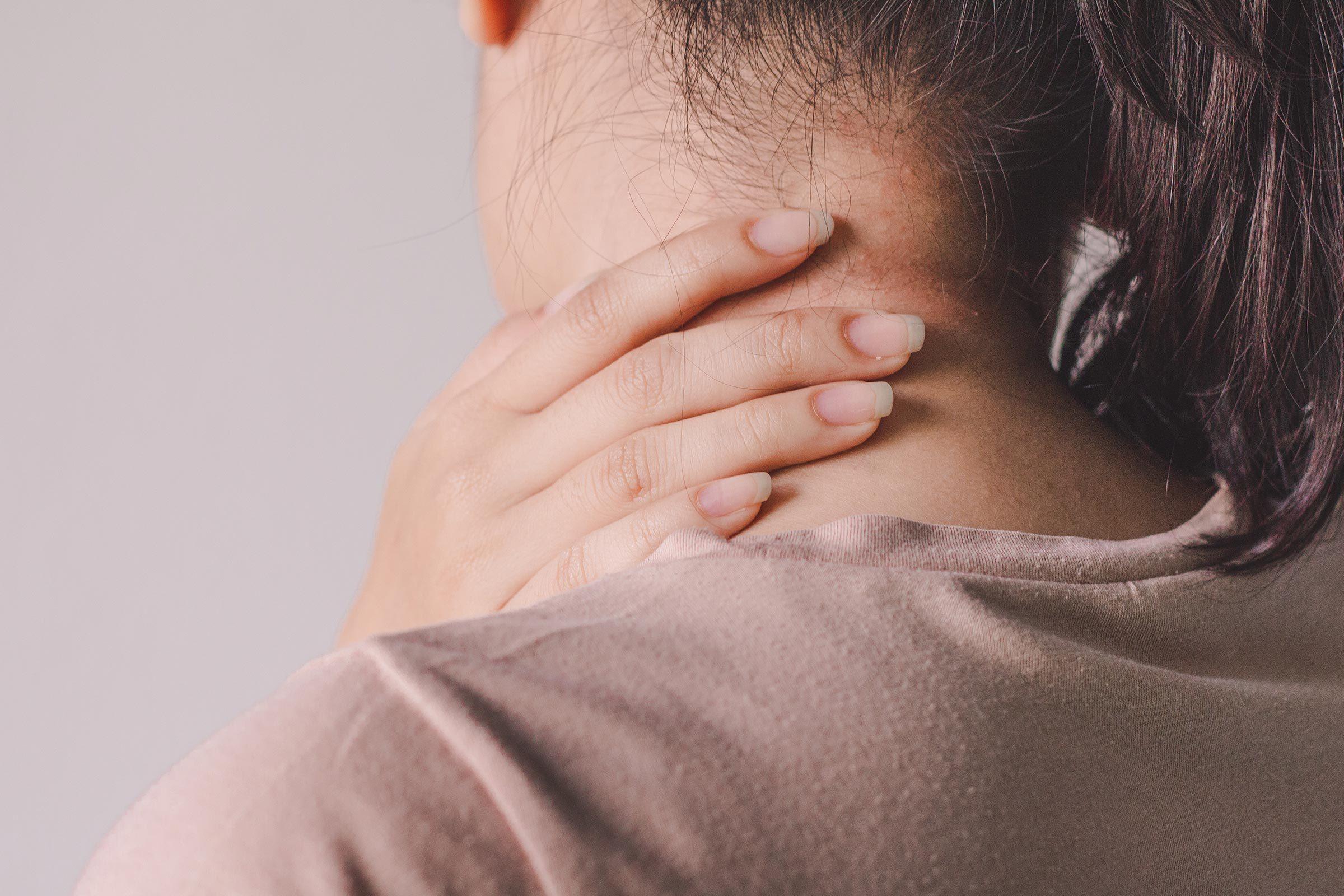 neck rash