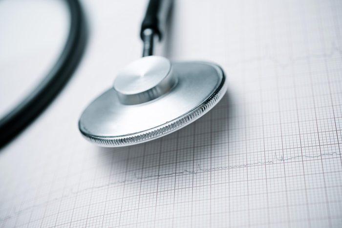 stethoscope ekg