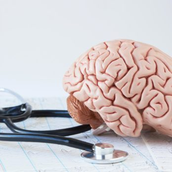 15 Things Brain Doctors Wish You Knew About Strokes