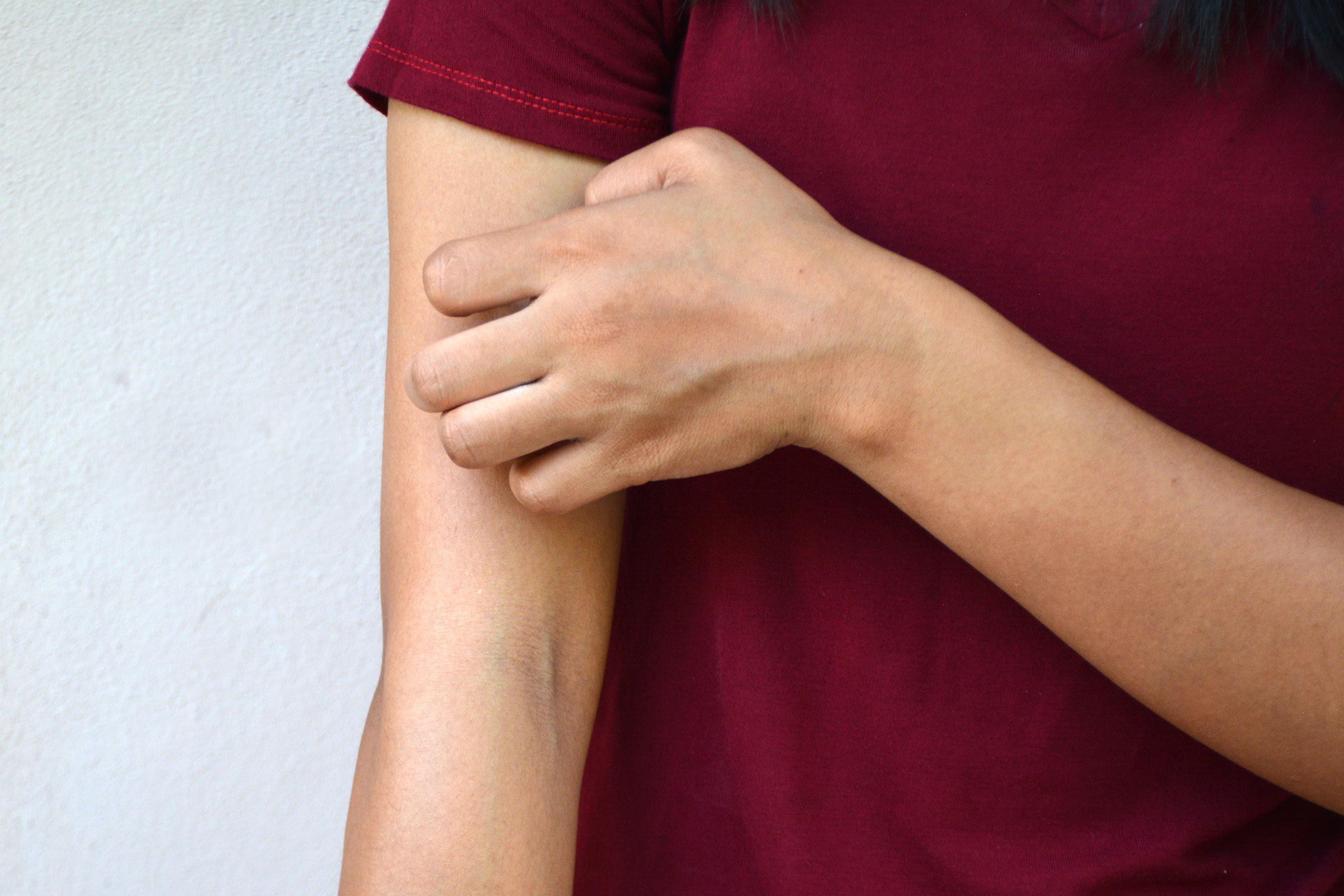 scratch arm