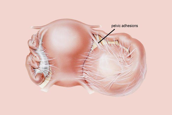 pelvic adhesions